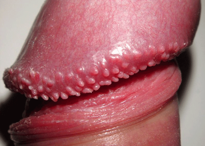 Redness around the area of anus